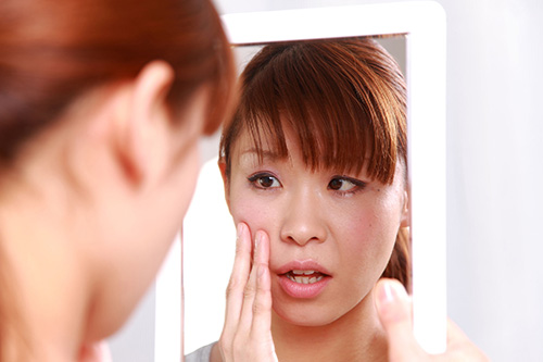 31876018 - young japanese woman worries about dry rough skin